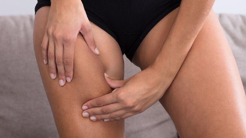Kobieta z cellulitem na udach